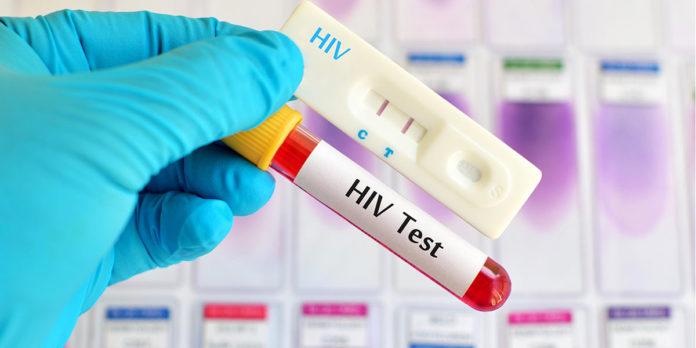 HIV diagnoses